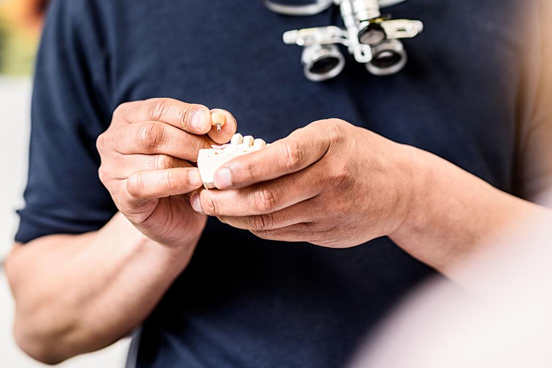 Zahnarzt Remscheid - Waldau - Leistungen - Implantologie